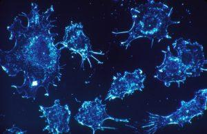 ガン細胞画像
